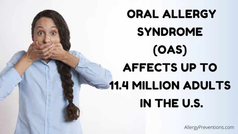 Oral Allergy Syndrome fact image states: Oral Syndrome (OAS) affects up to 11.4 million adults in the U.S. (United States), by allergypreventions.com