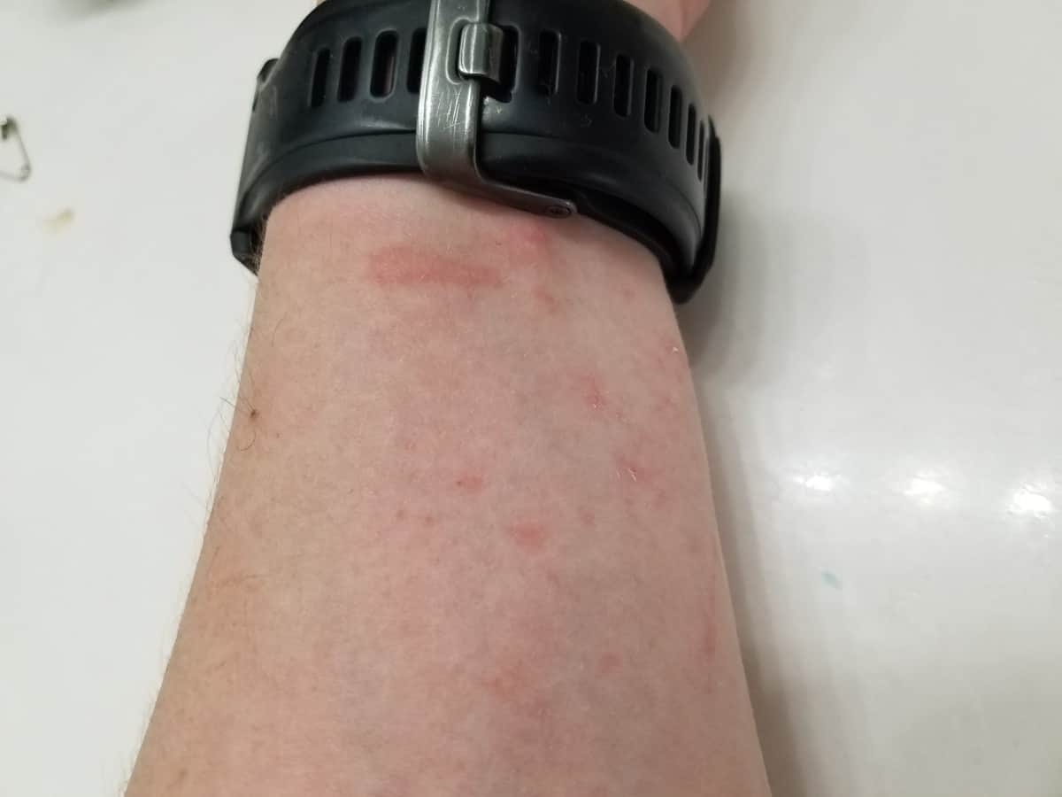 Hives from crawling in grass, allergic reaction